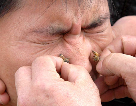 guy getting stung on the face by bees apitherapy